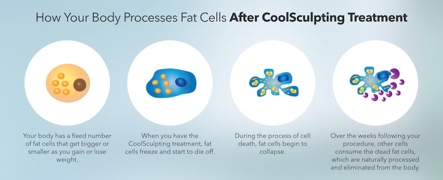 cool sculpt freeze fat cells away