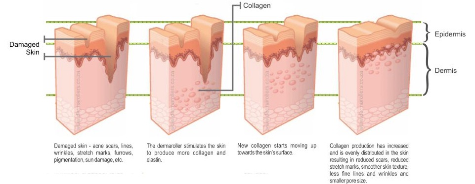 microneedling therapy san diego