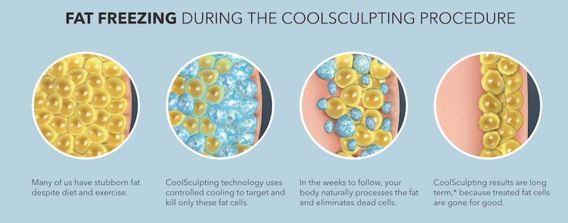 cool sculpting san diego freezing fat